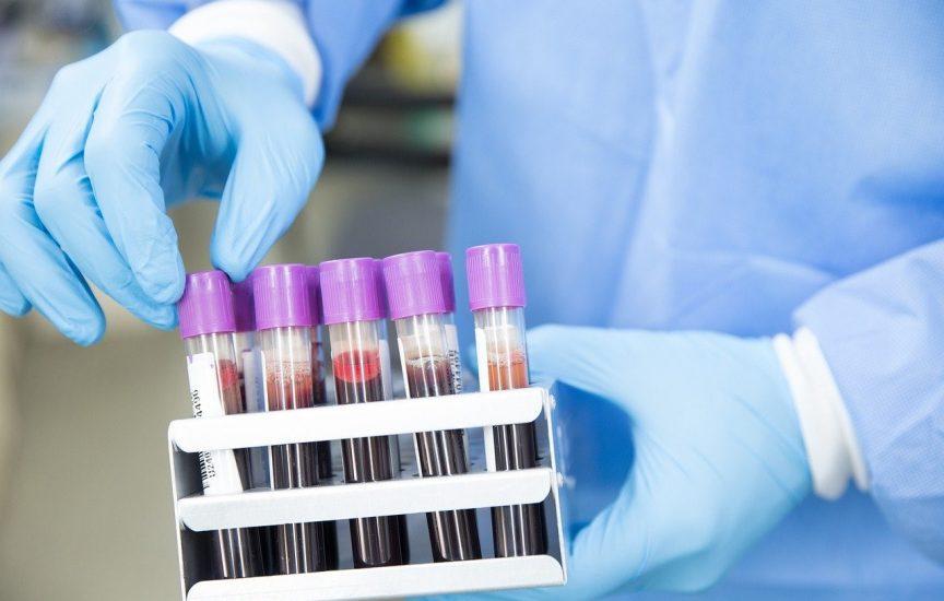 HIV and STD Tests